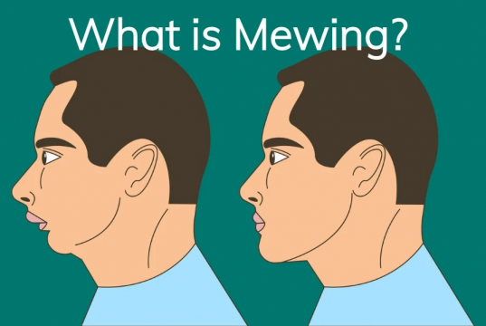 mewing craze